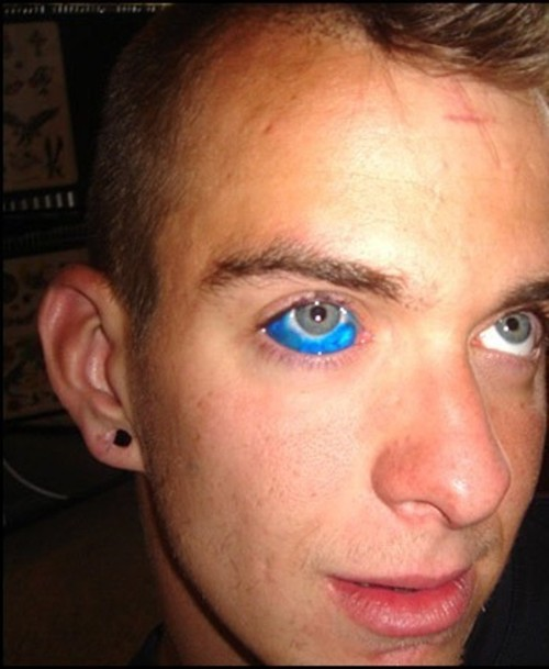 What s the deal with eyeball tattooing janeens charms for Tattoo your eyes